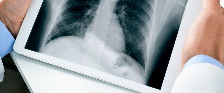 Chest x ray.jpg