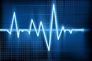 A heart rhythm displayed on a monitor.